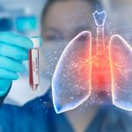新冠不是流感,不僅傷肺