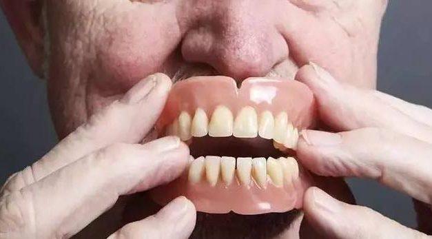 安装假牙前必须知道的问题