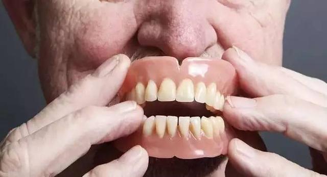 安裝假牙前必須知道的問題